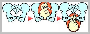 「産後の尿漏れ」は恥骨の矯正で改善!