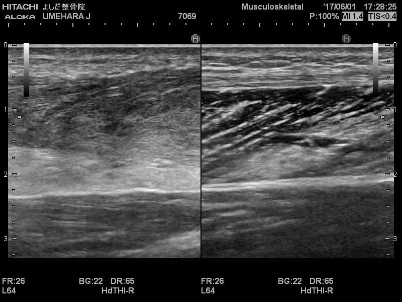 アキレス腱断裂から2ヶ月のエコー画像