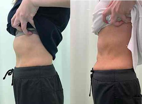 何十年もの間悩んでいた肋骨の出っ張りが、初回の施術で見事になくなりました!